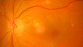Optic Neuritis in the Era of Biomarkers