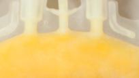 The Secrets of Cryoprecipitate: A Blood Banking Process