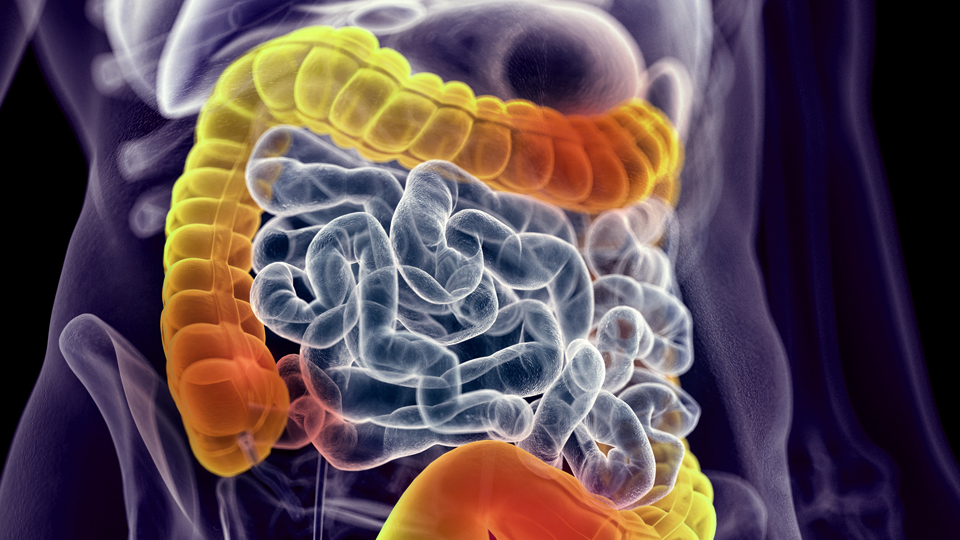 Genetic Testing for Early Onset Inflammatory Bowel Disease [A Test In Focus]