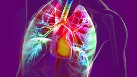 Update on 2015 WHO Classification of Lung Adenocarcinoma