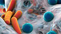 Robin Patel, M.D., Discusses Antimicrobial Resistance