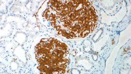 Mayo Clinic Laboratory and Pathology Research Roundup: March 16