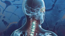 Mayo Clinic Develops First-in-U.S. Neurology Test to Distinguish Spectrum of Autoimmune Demyelinating Diseases from Multiple Sclerosis