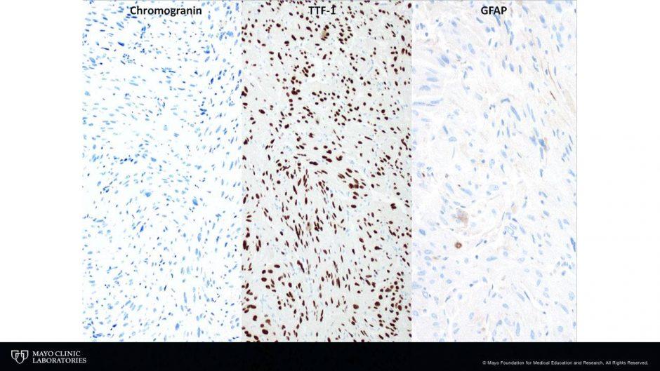 Chromogranin and TTF-1, 100x. GFAP, 400x